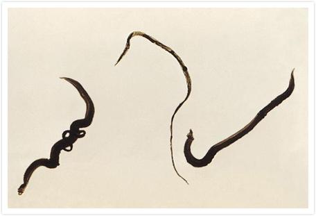 Schistosomiasis About Ntds Eisai Atm Navigator